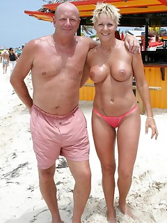 Precancerous lesions breast
